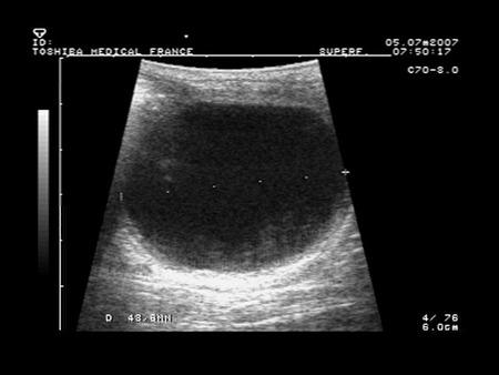 Les chaleurs de la gyneco 1991 - 1 part 4